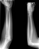 Healed arm bone fracture, X_rays. This is a healed fracture of the radius, one of the two bones of the lower arm, seen from two different angles. The ...
