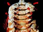 Arteries of vertebral column, within, posterior view.