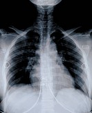X_ray film of chest