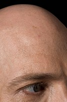 Bald head of a man