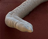Dog roundworm. Coloured scanning electron micrograph SEM showing the tail of a dog roundworm Toxocara canis. This is a dog parasite whose eggs are fou...