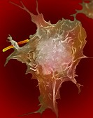 Macrophage engulfing bacteria. Macrophages are white blood cells that have left the blood vessel in search of bacterial infections. Upon finding the b...