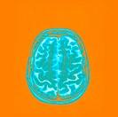 BRAIN, MRI