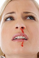 young, blond woman having nosebleed
