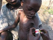A malnourished child is measured to determine the extent of his illness  Feeding centres and other humanitarian aid were organised in Angola after wid...
