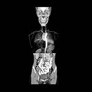 This frontal composite image was created utilizing a CT reconstruction of the abdomen and pelvis, MRA of chest and 3D CT reconstruction of the skull.
