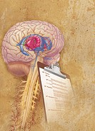 Conceptual illustration comparing a clinical checklist to diagnosis Parkinson´s disease to the brain. Parkinson´s disease causes movement disorders fr...