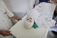 burn victims of a IED attack in Afghanistan