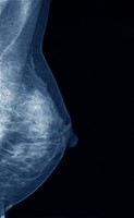 Digital mammogram showing the normal left breast of a 48 year old woman, side view.