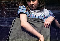 Girl with juvenile rheumatoid arthritis JRA, a chronic condition that usually appears in children under the age of 16. Symptoms of JRA can include joi...