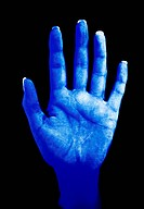 Inadequate hand washing. Woman´s hand photographed in UV light after application of a special revealing fluid and subsequent hand washing. The fluid f...