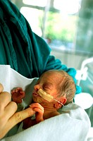 24 week pregnancy just newborn ready to go under intensive therapy this is the minimum age to survive
