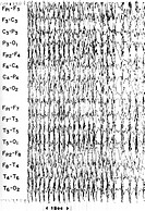 Electroencephalogram EEG of a generalized tonic_clonic grand mal epileptic seizure during the clonic phase the second phase. In this stage the limbs a...