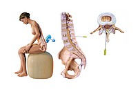 Spinal anaesthetic. Computer artwork of the injection of a spinal anaesthetic into a woman´s lower back. The anaesthetic drug is being injected near t...