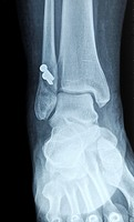 authentic x-ray picture of human fracture fibula bone with metal screws