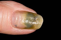 Close_up of a fungal nail infection of the thumb in a 73 year old female patient. Known as onychomycosis, or tinea unguium, it can be caused by variou...