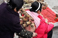 Yangshou China: a woman getting a Moxibustion treatment, a traditional Chinese medicine therapy with moxa mugwort herb, at the local market