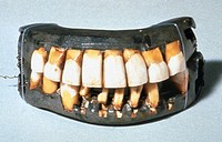 WASHINGTON: DENTURES.Set of dentures owned by George Washington, first President of the United States.