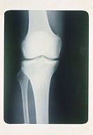 X_ray of arthritic knee