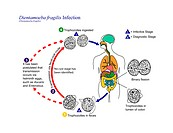Dientamoebiasis life cycle. Diagram of the life cycle of the protozoan parasite Dientamoeba fragilis, dientamoebiasis. This parasite is common worldwi...