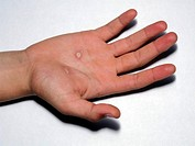 Electric burns. Lesions on the hand of a 15_year_old girl who was electrocuted with a 240 volts supply.