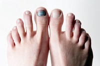 The big toe takes a toll after a season of skiing in Lake Tahoe, Nevada.