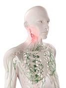 Swollen lymph nodes in the neck, computer artwork.