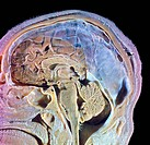 human head, cut with brain Photo_Technical Short Cuts: LUMEN = optical microscope, scanning electron microscope = scanning electron microscope, non_di...