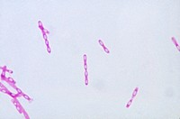 Light micrograph LM showing tissue infected Bacillus anthracis, a Gram_positive, spore_forming, rod_shaped bacteria species that is the causative agen...