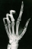 This x_ray shows a normal human hand.