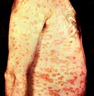 Pityriasis rosea, a common acute and benign skin rash that spreads across the body and is characterized by itchy lesions.