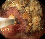Endoscopic view of the stomach in a patient showing food gastric retention caused by gastric cancer adenocarcinoma of the intestinal type in the gastr...