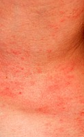 allergic rash dermatitis skin texture