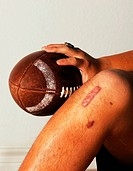 Highschool football scar.