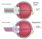 Astigmatism, a common eye defect, eps10, transparency, mesh