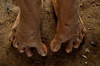 Huaorani Indian with splayed feet. Several of the Huaorani have these feet problems and there are some with 6 toes on each foot, Bameno Community. Yas...