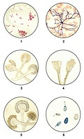 Bacteria smears of germs for microbiological diagnosis, microscope slides, clinical microbiology, state of scientific research around 1915, 1: Tubercu...