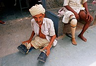 Amputated men. One has a prosthetic leg while another is waiting for two. Jaipur, India.