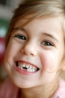 Girl showing her milk teeth