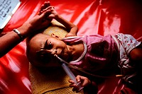 Undernourished Infant in Dhaka, Bangladesh