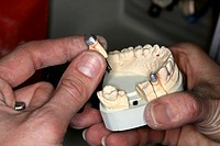 Dental prosthesis production. Worker holding a mould of a person´s mouth that has been used to create custom removable prosthetic teeth silver_capped....