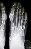 Hallux rigidus before surgery. X_ray showing foot bones before surgery to correct a case of hallux rigidus, a stiff big toe. This is due to a bone spu...