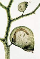 Greater bladderwort Utricularia vulgaris, light micrograph. This carnivorous plant traps small aquatic animals in its bladders. As the animals decay t...