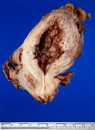 Excised specimen of a cancerous human bladder, showing a large tumour mass. Occupational factors such as the exposure to certain carcinogenic chemical...
