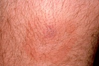 Dermatology: insect bite. A rounded pinkish swelling with surrounding inflammation on the lower leg of a 33 year old man with an insect bite.