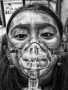 A little girl using a nebulizer.