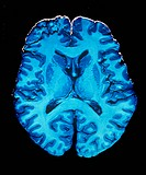 Human brain. Section through a gross specimen of a human brain. The front of the brain is at the top. The highly folded darker blue areas are the grey...