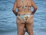Cellulite in bathing suit