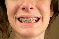 Close the mouth with braces of a teenage girl.