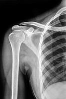 Shoulder bones X-rays.
